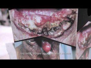 Video Kampanye #SudahWaktunya